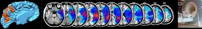 fMRI, lesion-symptom mapping, MRI scanner