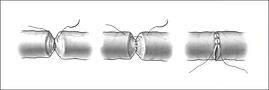 Reversion vasectomia