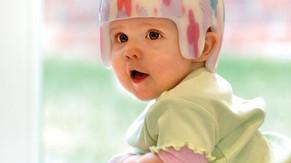Capacete especial para bebês ajuda a tratar deformidade - Veja.com / Saúde