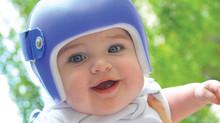 Bebê de capacete: quando é necessário? Cerca de 12% dos bebês brasileiros têm assimetria craniana -