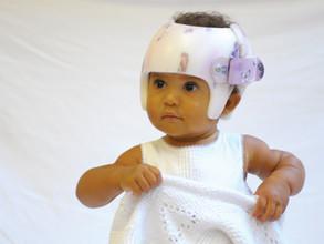 Assimetria craniana em bebês exige cuidado, mas pode ser revertida – Portal SAÚDE PLENA