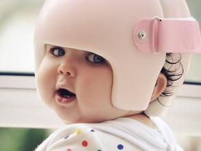 Assimetria craniana: capacete é usado para tratar achatamento da cabeça do bebê - Portal It Mãe