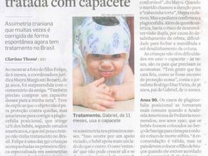 Deformidade na cabeça de bebês é tratada com capacete - Jornal O ESTADO DE SÃO PAULO.