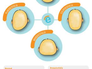 Plagiocefalia Posicional: assimetria craniana ou cabeça torta - Portal Guia do Bebê.
