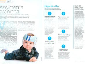 Saiba o que fazer para evitar as assimetrias cranianas em bebês – Revista Claudia Bebê.