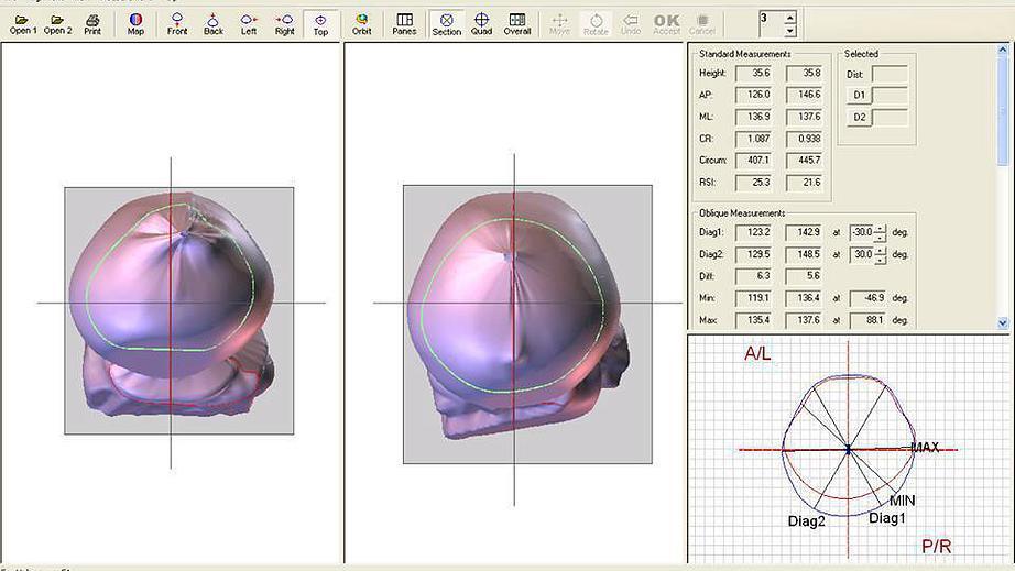 escaneamento a laser.jpg