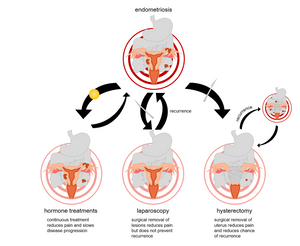 Treatment options for endometriosis do not include a cure. The most non-invasive treatment commonly used to treat endometriosis is continuous use of an oral contraceptive or intrauterine device (IUD) (left), which reduces pain (light red rings) and menstrual fluid, slowing endometriosis progression. Laparoscopic surgery (middle) is a minimally invasive surgery used to definitively diagnose endometriosis and remove endometrial attachments on pelvic organs. Laparoscopy can relieve endometriosis pain, but does not prevent recurrence. Hysterectomy (right) is the surgical removal of the uterus, which reduces endometriosis-related pain and the major source of the disease, the endometrium. Although the endometrium is removed in this process, endometriosis recurrence does occur in some patients who have had a hysterectomy.