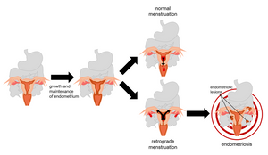 Retrograde menstruation is the prevailing hypothesis for endometriosis development. The endometrium (uterine lining) grows and thickens every month in preparation for implantation of a fertilized egg. In one's absence, the endometrium sheds during menstruation. Normally, menstrual fluid exits the uterus through the cervix (middle, top) and is expelled from the body. However, when retrograde menstruation occurs (middle, bottom), menstrual fluid exits the fallopian tubes near the ovaries and empties into the body cavity. This is one possibility for how endometrial tissue, carried in retrograde menstrual fluid, reaches the pelvic cavity. This endometrial tissue can attach to pelvic organs, resulting in endometriosis, the main symptom of which is pain (dark red rings).