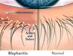 Blepharitis_edited.jpg