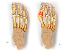 Vbočený palec – pomůže cvičení?
