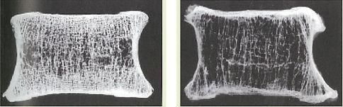 正常と骨粗鬆症の椎体