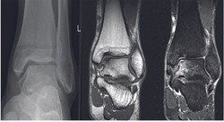 Osteochondral-lesions-of-the-talus_Fig1_lo-res.jpg