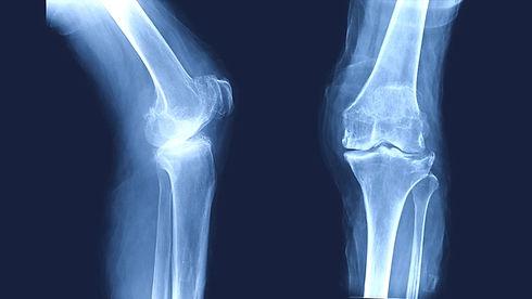 osteoarthritis-oa-knee-film-xray_shutterstock_756734566-1068x601_edited.jpg
