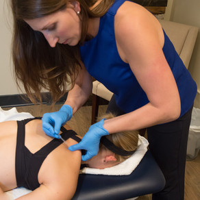 Why Should You Try Dry Needling?