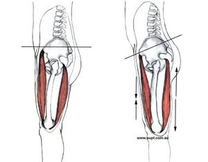 What does an anterior pelvic tilt look like