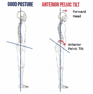 Good posture vs bad posture
