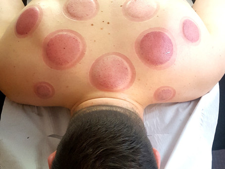 What are the Benefits of Cupping?