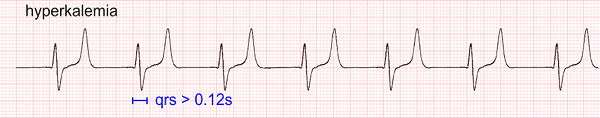 hyperkalemia ecg Tall Tented T wave.png