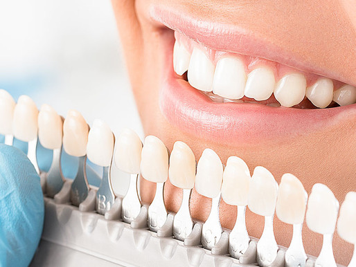 Veneers or Crowns: Which is Right for Me?