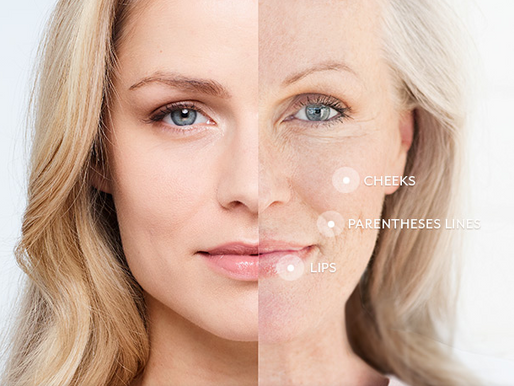 What is Juvederm