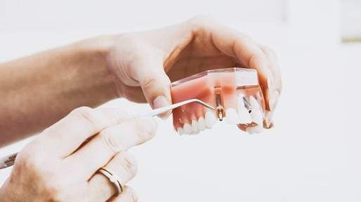 What are Mini Dental Implants
