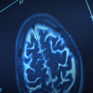 Serious Brain Disorders Found in Mild Covid-19 Patients