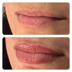 Cosmetic Lip Tattoo Full Lip Colour Blend in Alicia Rose's signature colour Shen Rose