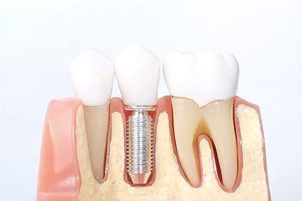implantes-dentales-ventajas-1024x682.jpg