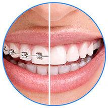 ortodontia.jpf