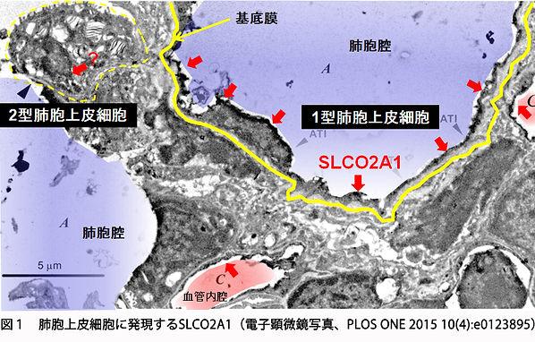 SLCO2A1肺.jpg