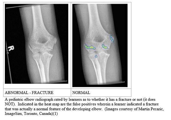 Fracture Image.JPG