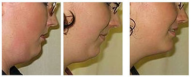 injection-lipolysis-double-chin-before-a