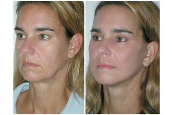 Threadlift_before-and-after-palm-beach-f