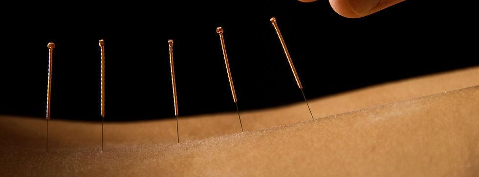 Acupuncture close up_edited.jpg