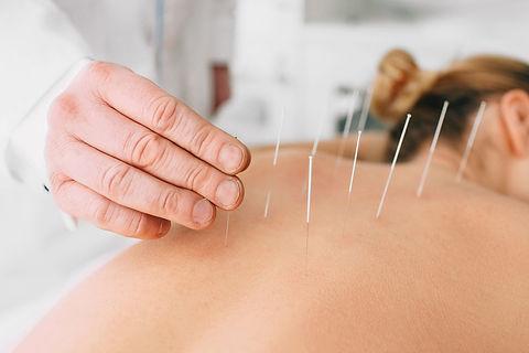 acupuncture-01.jpg