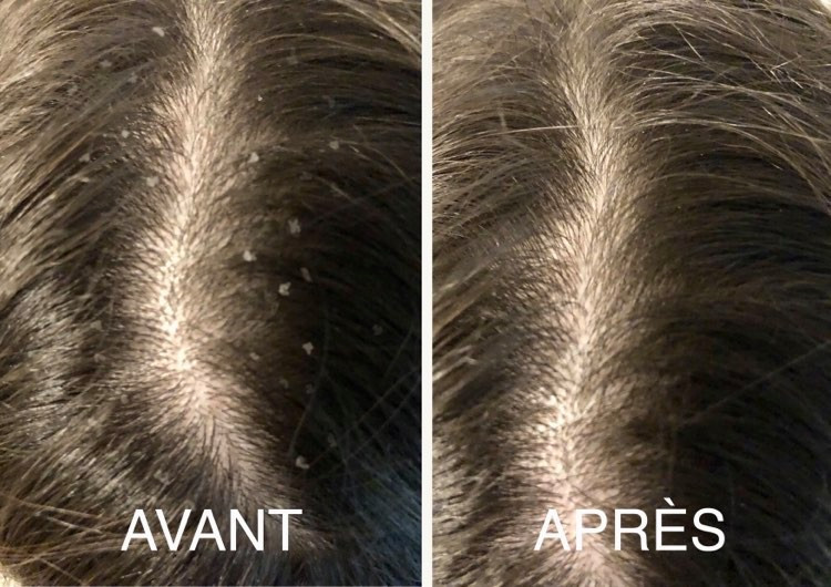 Reduction des pellicules avec shampoing solide antipelliculaire melo ayurveda
