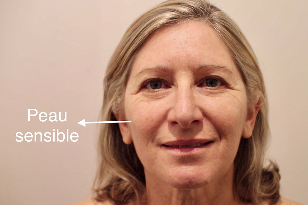 peau visage sensible et seche sebum