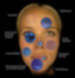 Huidanalyse-Observe--287x300.png