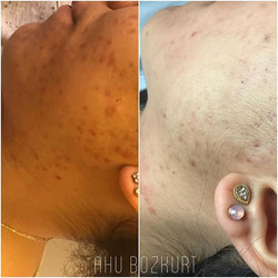 Before & after 🙌1 treatment 🙌Thanks for choosing #LaElegance #Beautysalon by #Ahubozkurt #Rotterda