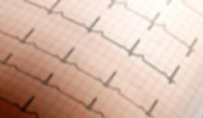 Close up of ECG paper graph report Backg