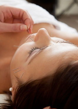 cosmetic acupuncture glasgow