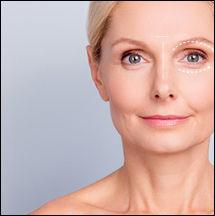 face-Blepharoplasty.jpg