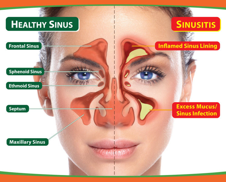 Sinusitis crónica