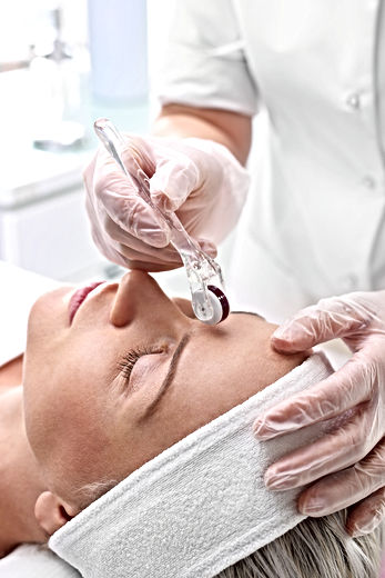 Microneedle mesotherapy, face lift.jpg