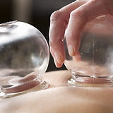 Cupping Therapy, Sicamous