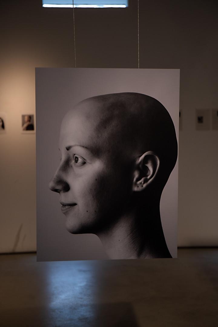 Alopecia Exhibition Kunst Kapel