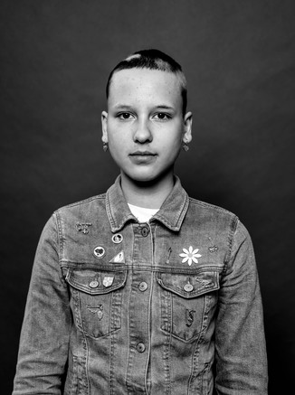 alopecia10-1600.jpg