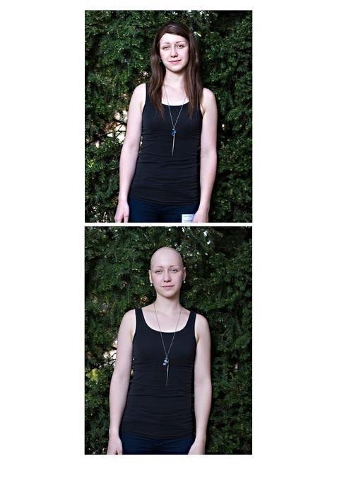 alopecia4-1600.jpg