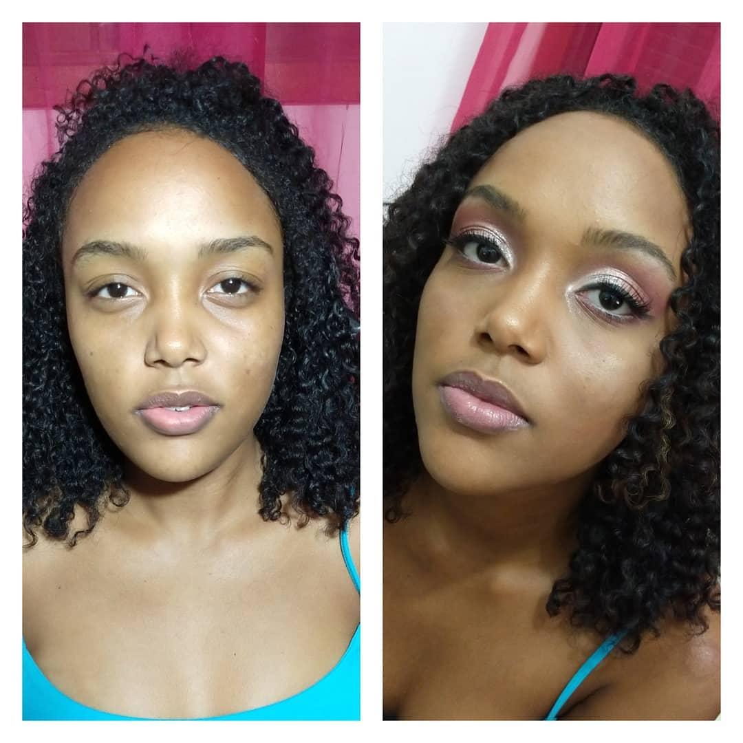 Antes e Depois - Pele Negra