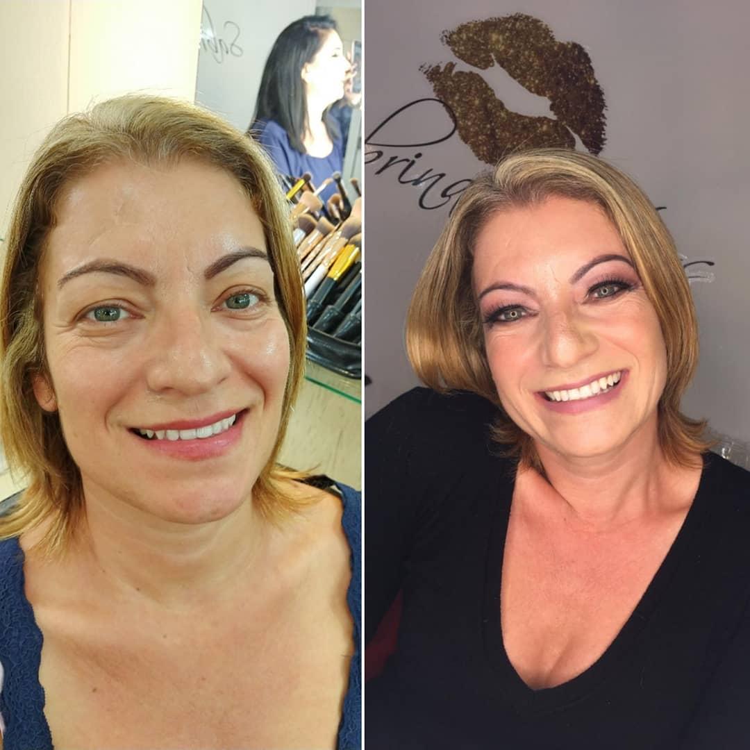 Antes e Depois - Pele Madura
